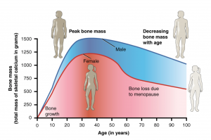 Is osteoporosis inevitable as we age?
